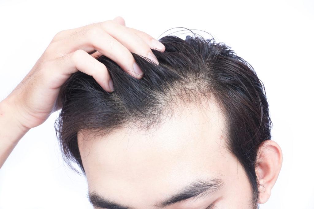 男性型脱毛症(AGA)のご相談はお気軽に